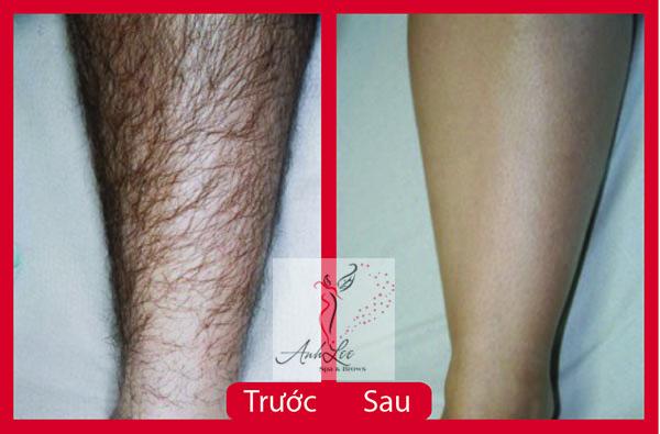 dịch vụ triệt lông vĩnh viễn cho nam giới