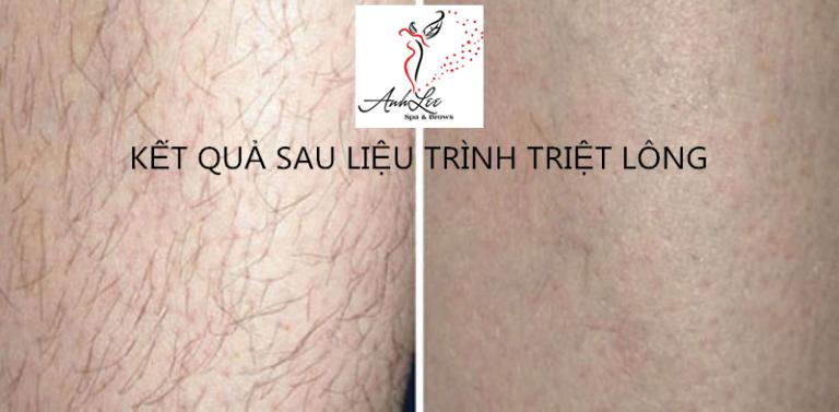 Kết quả triệt lông chân vĩnh viễn