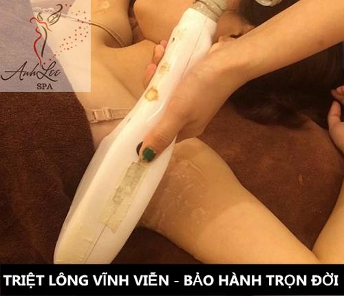 Dịch vụ wax lông nách lông chân vĩnh viễn