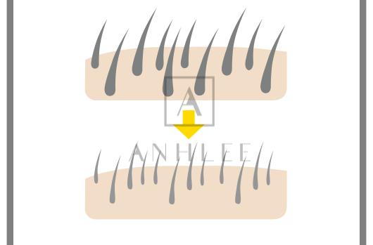 Triệt lông vĩnh viễn sau phien thứ 2 và 3
